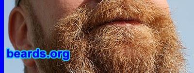 detail of Paulie's beard